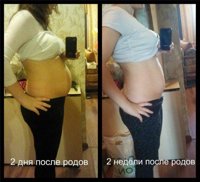 Живот после беременности по неделям